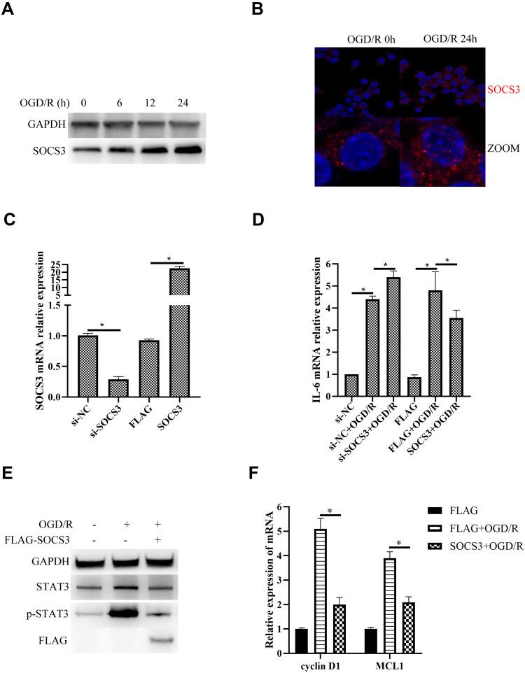 SOCS3 suppresses OGD/R-induced STAT3 activation and inflammatory factor expression in BV-2 microglial cells. ( A ) SOCS3 protein expression was examined by Western blot in OGD/R-treated BV2 microglia. GAPDH protein expression was used as loading control. ( B ) Cellular distribution of SOCS3 protein (Red) were detected by immunofluorescence in OGD/R-treated BV2 microglia. Nuclei were stained with DAPI (blue). ( C ) SOCS3 mRNA expression was examined by qPCR in BV2 microglia transfected with the indicated siRNAs or plasmids. ( D ) IL6 mRNA expression was examined by qPCR in BV2 microglia transfected with the indicated siRNAs or plasmids under OGD/R condition. ( E ) Protein expressions of STAT3 and phosphorylated STAT3 (p-STAT3) were examined by Western blot in BV2 microglia transfected with pCMV3-N-FLAG-SOCS3 plasmid under OGD/R condition. ( F ) mRNA expressions of Cyclin D1 and MCL1 were examined by qPCR in BV2 microglia transfected with pCMV3-N-FLAG-SOCS3 plasmid under OGD/R condition. Data are represented as means ± SEM (n=3; *Represents P