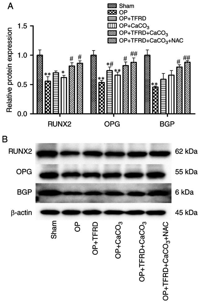 Western blot analysis of the expression of bone formation-related proteins in OP rats. (A) Relative expression of RUNX2, OPG and BGP; (B) protein band density was calculated as a ratio relative to β-actin protein levels. The data are expressed as the mean ± SD. Compared with the sham-operated group, * P