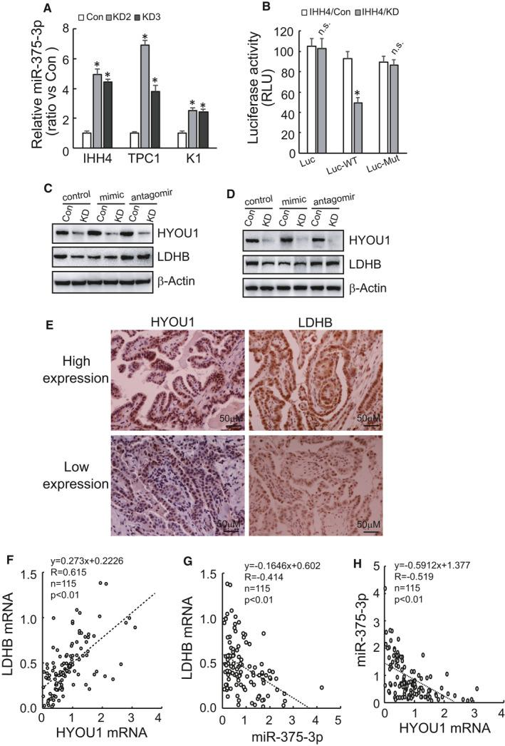 Decreased stability of LDHB mRNA caused by HYOU1 silencing is related to the increase of miR‐375‐3p. A, The expression of miR‐375 was analysed using RT‐PCR in control or HYOU1‐silenced IHH4, TPC1 and K1 cells. B, Luciferase activity was measured in control or HYOU1‐silenced IHH4 cells transfected with luciferase reporter vector bearing wild‐type or mutant 3′UTR of LDHB mRNA. C, D, Western blot analysis of LDHB in control or HYOU1‐silenced IHH4 or K1 cells transfected miR‐375 mimics and antagomir. E, Representative images of immunostaining of HYOU1 and LDHB in PTC tissues. F‐H, HYOU1 mRNA, LDHB mRNA and miR‐375 levels were measured in 115 PTC tissues using RT‐qPCR. The correlation among them was assessed by Spearman's rank correlation