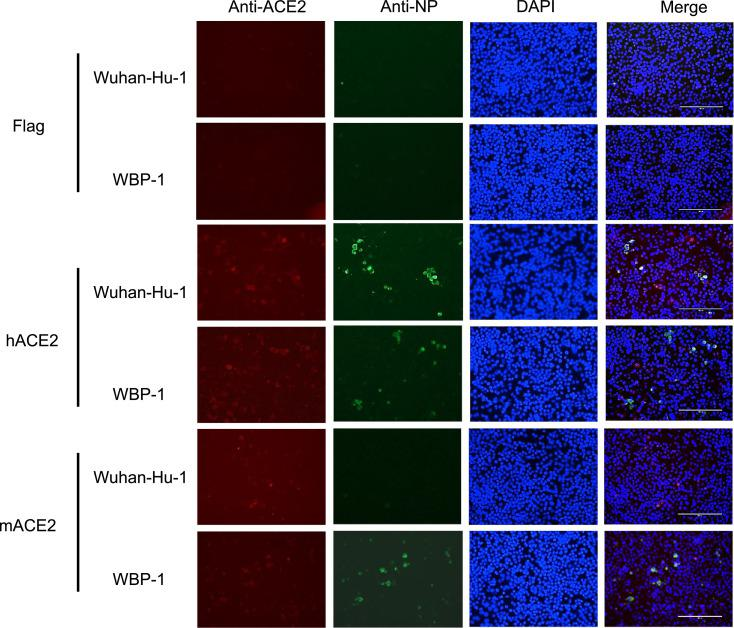 WBP-1 virus using mouse ACE2 to gain access to cells was determined by immunofluorescence. Hela cells with transfection of empty vector (Flag), hACE2, or mACE2 plasmids were infected with WT Wuhan-Hu-1 or mouse-adapted WBP-1. ACE2 expression was detcted using rabbit anti-ACE2 IgG followed by CoraLite594-conjugated goat anti-rabbit IgG (H+L). SARS-CoV-2 nucleocapsid expression was detected using mouse anti-NP IgG followed by CoraLite488-conjugated Affinipure goat anti-mouse IgG(H+L). Nuclei were stained with DAPI. Scale bars, 200 μm.
