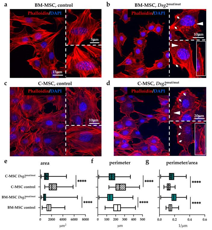 AC-linked Dsg2 variant affects cytoskeletal organization and morphology of cardiac and bone marrow mesenchymal stromal cells. ( a – d ) Confocal IF analysis of cultured cardiac- and BM-MSCs isolated from control or Dsg2 mut/mut mice. Cells were stained with AlexaFLUOR ® -568 conjugated phalloidin (red signal). Nuclei were counterstained with DAPI (blue signal). White arrows indicate focal adhesions, and arrowheads evidence actin puncta. Insets show sub-membrane thick actin filaments. ( e – g ) Morphometric evaluation of cell surface, perimeter, and perimeter/area ratio in cultured cardiac and BM-MSCs isolated from control or Dsg2 mut/mut mice. A total of 110 cells for each study group were analyzed. Whiskers represent min to max values. **** p ≤ 0.0001.