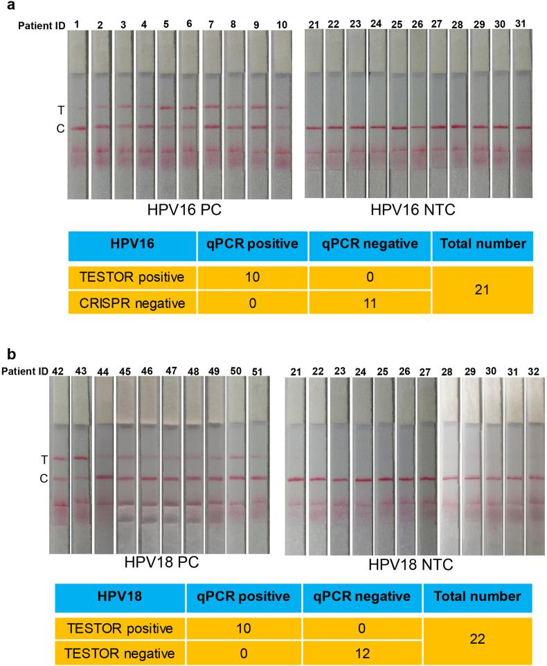 Detection of HPV in clinical samples using lateral flow TESTOR assay. a , Lateral flow strips showing HPV16 TESTOR assay results (upper panel). Ten qPCR-positive and eleven qPCR-negative samples were used for HPV16 detection. The Cas12a detection assays were run on lateral flow strips and imaged after 5 min. Performance characteristics of lateral flow TESTOR assay (bottom panel). A total of 21 clinical samples were evaluated using the lateral flow version of the TESTOR assay. Both the positive agreement and negative agreements are 100%. NTC, no-template control; T, test line; C, control line. b , Lateral flow strip readouts for HPV18 detection using clinical samples. A total of 21 clinical samples were evaluated (10 HPV18 positives and 12 negatives). The reactions were 1:5 diluted after incubation at 37 °C for 30 min and then run on lateral flow strips and imaged after 5 min.