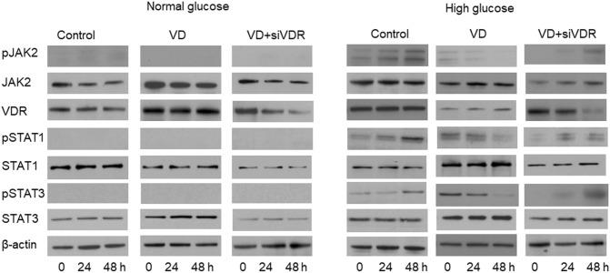VD inhibited tyrosine phosphorylation of JAK2, STAT1 and STAT3 which was induced by HG. Rat glomerular mesangial cells were cultured under different conditions with or without siVDR transfection for 24 or 48 h, and then subjected to immunoblotting