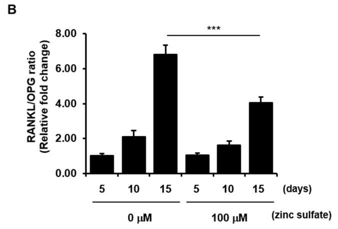 Effects of zinc sulfate on the levels of RANKL and OPG and the RANKL/OPG ratio in co-cultured h PDCs and THP-1 cells. ( A ) Protein levels of RANKL and OPG in co-cultured h PDCs and THP-1 cells treated with or without zinc sulfate after 5, 10, and 15 days of culture. ( B ) Measurement of the RANK/OPG ratio in co-cultured cells treated with or without zinc sulfate after 5, 10, and 15 days in culture. ** p
