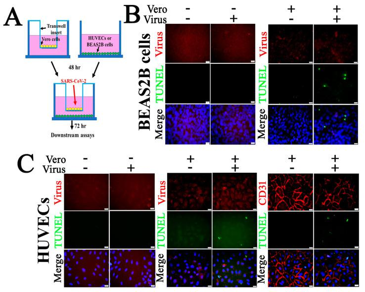 Co-culture of Vero cells and relatively nonpermissive HUVECs or BEAS2B cells results in apoptosis following SARS-CoV-2 infection. ( A ) Co-culture of Vero cells and BEAS2B ( B ) or HUVECs ( C ) cells. HUVECs ( C ) or BEAS2B cells ( B ) (in the culture wells) were co-cultured with or without Vero cells (in the culture insert). The co-cultures were exposed to 0.1 MOI of SARS-CoV-2 for 72 h. Fixed PBS thoroughly rinsed HUVECs ( C ) or BEAS2B cells ( B ) in the well were subjected to IF staining to detect SARS-CoV-2 (red) or CD31( C ) (red; an EC-specific marker) and TUNEL (green). Fixed Vero cells in the insert were subjected to IF staining to detect SARS-CoV-2 and TUNEL ( Figure S3 ). Nuclei of HUVECs were counterstained with DAPI (blue). Scalebars, 20 µm. Apoptotic signals were visualized in BEAS2B cells (11.23 ± 1.12%) and HUVECs (12.44 ± 2.24%) in infected groups ( n = 9/group). No apoptotic signal was detected in uninfected control groups ( n = 9/group). Three fields under fluorescent microscope (20×) were captured per well and image was processed with Image J to calculate the ratio of TUNEL to DAPI-labeled nucleated cells.