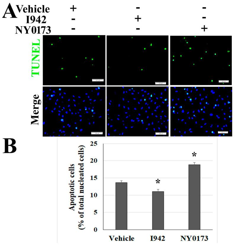 Pharmacological activators of EPAC protect ECs from apoptosis in Vero cells and HUVECs co-cultures following SARS-CoV-2 infection. HUVECs were co-cultured with Vero cells. The co-cultures were exposed to 0.1 MOI of SARS-CoV-2 for 24 h before treatment with I942 (5 µM), NY0173 (5µM), and vehicle for 48 h. Fixed HUVECs in the well were subjected to IF staining for SARS-CoV-2 (red) ( Figure S4D ) and TUNEL assay (green) ( A ). Fixed Vero cells in the inserts were subjected to TUNEL assay ( Figure S4A ). Nuclei of HUVECs were counterstained with DAPI (blue). Scale bars, 100 µm. ( B ) Percentage of TUNEL signal-positive HUVECs among all nucleated cells (DAPI staining) in each filed. The quantitative data presented are three independent experiments ( n = 78 fields in each group). Values are reported as mean ± SEM. Statistical significance was determined using a one-way analysis of variance. * compared with the vehicle group, p