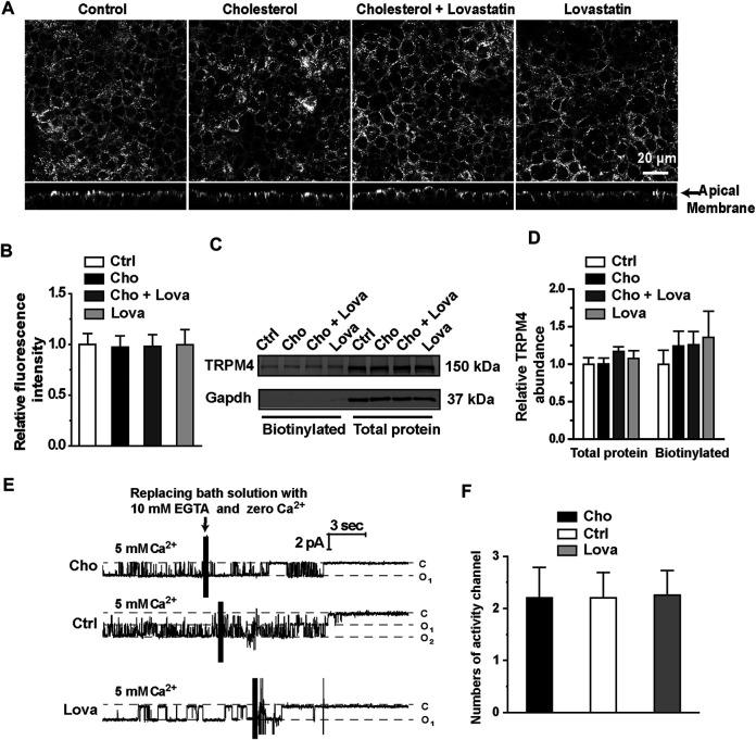 Treatment with cholesterol or lovastatin does not alter expression levels of TRPM4 in mpkCCDc14 Cells. (A) Representative confocal microscopy images of mpkCCDc14 cells stained with TRPM4 antibody under each indicated conditions. (B) Summary plots of fluorescence intensity of TRPM4. Data are from 24 cells in four sets of separate experiments. (C) Representative Western blots from cell-surface biotinylated and the total proteins of TRPM4 protein. (D) Summary plots of relative expression of TRPM4. Cells were either under control conditions or treated with 30 μg/ml cholesterol alone, 30 μg/ml cholesterol plus 5 μM lovastatin, or 5 μM lovastatin alone for 48 hrs, respectively. n = 5. (E) Representative single channel recording from inside-out patches exposed the patch membrane to the bath containing 5 mM CaCl 2 , followed by a bath solution with 10 mM EGTA and no calcium. Cells were either under control conditions or treated with 30 μg/ml cholesterol, or 5 μM lovastatin for 48 hrs, respectively. (F) Summary plots of the number of active channels in the patches under each indicated condition. n = 5 for control cells, n = 5 for cells treated with cholesterol, n = 4 for cells treated with lovastatin.
