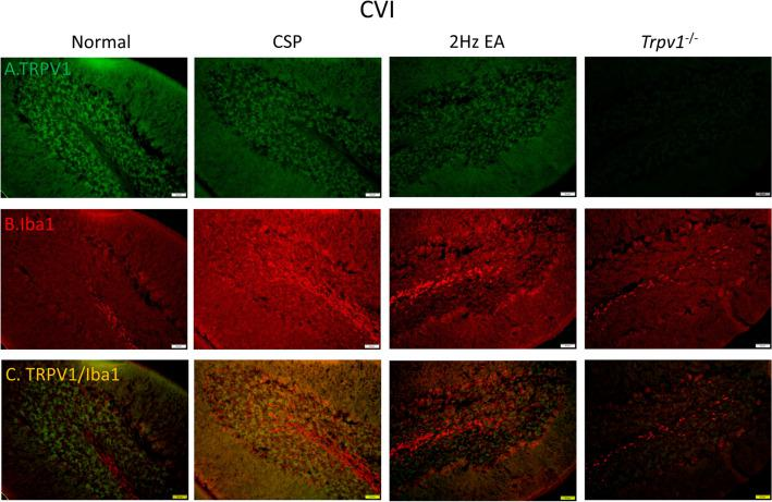 Immunofluorescence staining of TRPV1, Iba1, and double staining protein expression in the mice cerebellar lobule VI. A TRPV1, B Iba1, and C TRPV1/Iba1 double staining, immuno-positive (green, red, or yellow) signals in the mice cerebellar lobule VI region. Scale bar: 100 μm. n = 4 in all groups