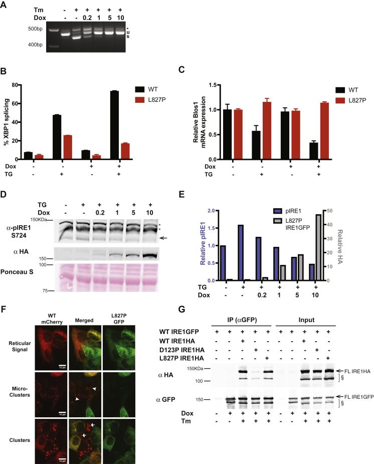 The L827P mutant inhibits WT IRE1α in HAP1 and Kms11 cells . A , IRE1GFP L827P inhibits XBP1 splicing in response to Tm in leukemic HAP1 cells. Parental HAP1 cells expressing IRE1GFP L827P in addition to the endogenous WT IRE1α were induced with the indicated concentrations of dox (μg/ml). The cells were then treated with 4 μg/ml Tm for 4 h, and XBP1 splicing was assessed by RT-PCR. B , L827P IRE1GFP inhibits ER stress-induced XBP1 splicing in multiple myeloma Kms11 cells. Kms11 cells expressing WT or L827P IRE1GFP were treated with 0.5 μM Tg for 4 h where indicated. RNA was extracted and XBP1 splicing was assessed by RT-PCR and quantified. C , L827P inhibits regulated IRE1-dependent decay activity in response to ER stress in Kms11 cells. The same samples as in B were used to perform a qPCR to detect BLOC1S1 expression levels as in Figure 1 C . D , expression of L827P decreases endogenous WT IRE1α phosphorylation in response to ER stress. Parental HAP1 cells, with constitutive expression of WT IRE1α and inducible expression of IRE1GFP L827P were induced with dox and treated with Tg (0.2 μM for 4 h). Cells were lysed and proteins were analyzed by Western blot. Arrow , endogenous phospho-S724 IRE1α; ∗, nonspecific bands. E. Quantification of phospho-IRE1α S724 and L827 mutant. The intensities of the Western blot bands from the experiment described in D were normalized to total protein contents of the samples, measured by Ponceau S staining, quantified, and plotted. F , L827P inhibits WT IRE1α clustering. Representative images of WT IRE1mCherry/L827P IRE1GFP-expressing cells treated with 4 μg/ml Tm for 3 h. Cells that coexpress mCherry and GFP typically exhibit reticular signal with no clusters. mCherry-expressing cells with low GFP expression form faint cluster-like foci termed dim clusters or the bright foci typical of WT IRE1α clusters. Arrowheads , two typical dim clusters; arrows , two typical bright clusters. G , L827P binds full-length WT IRE1α. HAP1KO cells wer