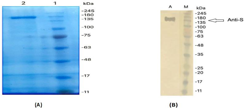 Western blot analysis of anti-MERS-CoV S IgY antibodies. ( A ) The S protein of MERS-CoV subjected to SDS-PAGE under reducing conditions. ( B ) Western blot analysis of the anti-S IgY antibody response.