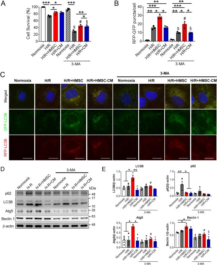 Hypoxic rat mesenchymal stem cells (HMSCs) ameliorated hypoxia-reoxygenation (H/R) injured renal tubular cells through enhancing autophagy. a H/R injury (hypoxia for 24 h followed by reoxygenation for 6 h) significantly decreased cell survival in NRK-52E cells determined by an MTT assay. Either co-culture with HMSCs or addition of HMSC-conditioned medium (CM) decreased H/R-injury-induced cell death. Addition of 3-methyl adenine (3-MA), an autophagy inhibitor, abolished the protective effects of HSMCs and HMSC-CM. * p
