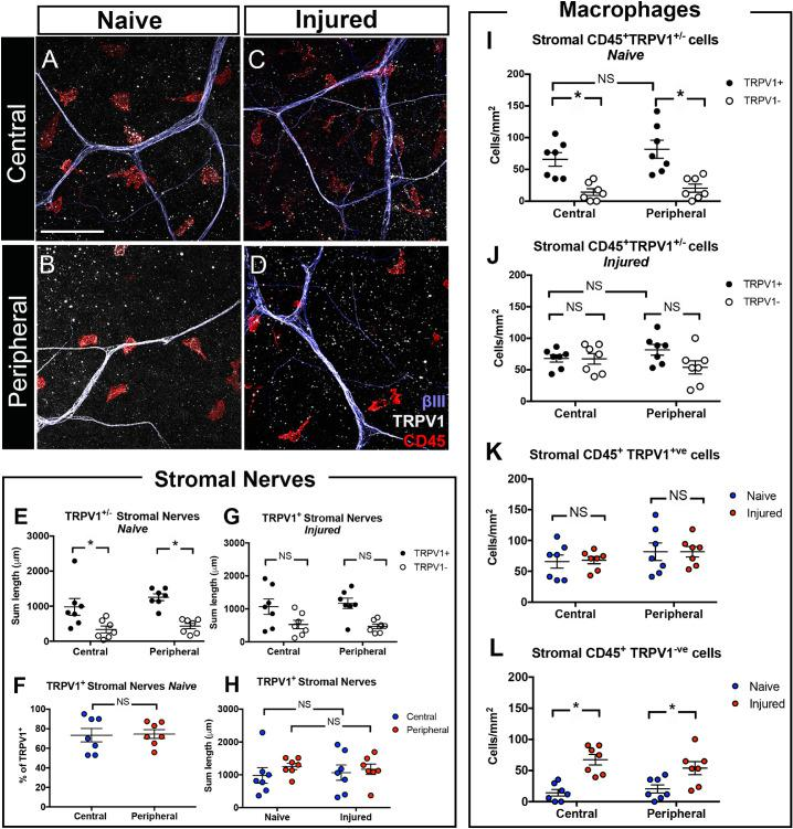 Stromal TRPV1 + nerves and CD45 + TRPV1 + macrophages in intact and injured corneas. ( A–D ) Superimposed images of βIII, TRPV1, and CD45 staining demonstrate TRPV1 + and TRPV1 − nerves and their anatomical interaction with macrophages in central and peripheral stroma of intact ( A , B ) and injured corneas ( C , D ). ( E–H ) The sum lengths of TRPV1 + stromal nerves were higher in both central and peripheral regions of the intact corneas ( P