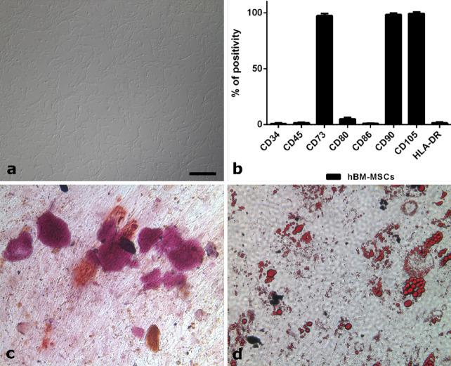 ( a – d ) MSCs characterization after in vitro expansion. ( a ) Cells, isolated from the bone marrow of a healthy donor, display the typical spindle-shaped morphology of MSCs. ( b ) Immunophenotyping by flow cytometry reveals expression of MSCs markers (CD73, CD90, and CD105) and lack of hematopoietic markers (CD34, CD45, CD80, CD86, and HLA-DR). ( c ) After incubation with the appropriate medium, the isolated cells were able to differentiate into osteoblasts as revealed by Alizarin Red staining (Sigma-Aldrich), which highlights calcium depositions. ( d ) At the same time, the isolated cells were also able to differentiate into adipocytes, as detected by Oil Red O (Sigma-Aldrich), which makes fat droplets visible. All the figures in the panel are the same scale; bar—200 µm.