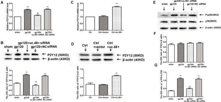 Effects of uc.48+ on P2Y12 receptor expression and activation of P2Y12 downstream P38 MAPK pathway in vivo . Real-time PCR (A) and Western blotting (B) analyses showed siRNA silencing of uc.48+ downregulated P2Y12 receptor expression. n = 10 rats per group. Data are displayed as means ± SEM. ∗∗ p
