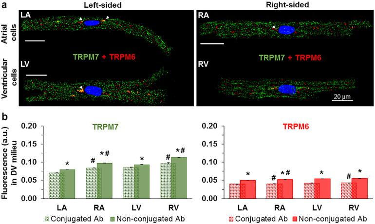 Immunofluorescence images depicting co-expression of TRPM6 and TRPM7 proteins in human cardiomyocytes. ( a ) The immunofluorescence of TRPM7 ( green ) and TRPM6 ( red ) in the same LA, RA, LV, and RV cardiomyocyte when using conjugated antibodies (the arrowheads indicate the localization of TRPM6 protein in perinuclear area). ( b ) Quantification of the staining intensity of the immunodetected conjugated antibodies ( spotty ) and non-conjugated antibodies ( smooth ) for both proteins in cardiomyocytes from the four chambers of the heart as indicated. * P