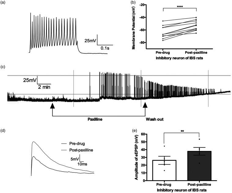 The RMP and EPSP of spinal cord lamina II neurons in IBS rats before and after the application of paxilline. (a) Representative action potential trace of an inhibitory interneuron. (b) Bar graph of the membrane potential of inhibitory neurons. Neurons, n = 11; animals, n = 9; ****: P