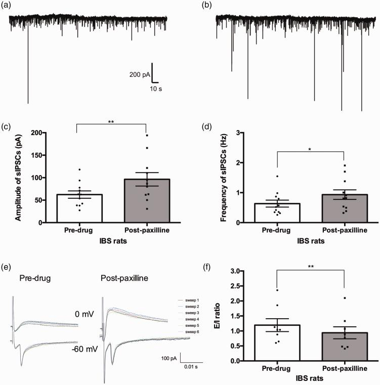 The sIPSCs and E/I of spinal cord lamina II neurons in IBS rats before and after application of paxilline. (a, b) Representative traces of sIPSC recorded from lamina II neurons in thoracolumbar spinal cord slices taken from IBS rats. (c, d) Bar graphs of the amplitude and frequency of sIPSCs in IBS rats. Neurons, n = 11; animals, n = 5 per group. (e) Representative traces of eEPSC (voltage clamped at −60 mv) and eIPSC (voltage clamped at 0 mv) recorded in the neuron of thoracolumbar spinal cord slice from IBS rats. The amplitude of eIPSCs increased after application of paxilline compared to the baseline. (f) Bar graph of the E/I ratio. Neurons, n = 8; animals, n = 5 per group; P = 0.0044. *: P