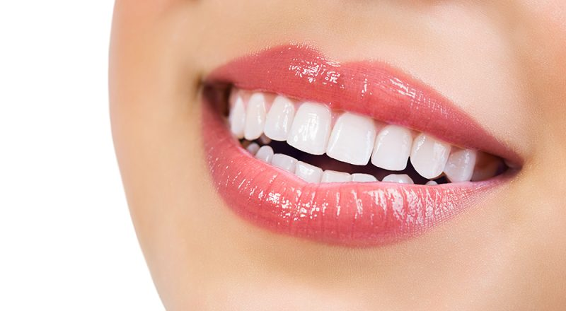 Why Teeth Cleanings Are Important