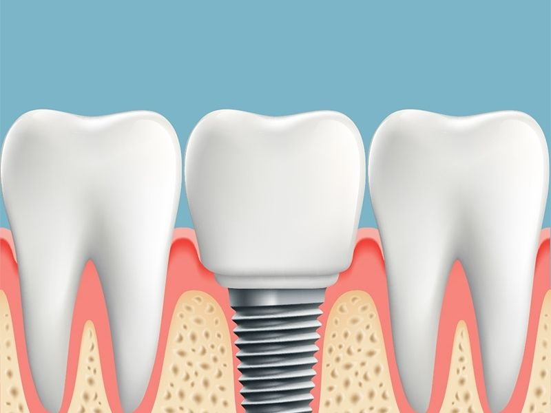 Your Intro to Dental Implants