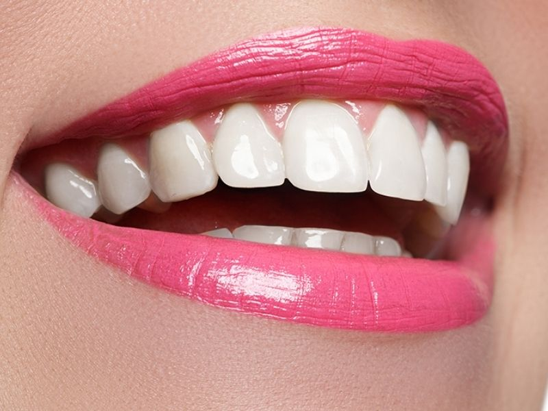 Porcelain Veneers Can Give You a Hollywood Smile