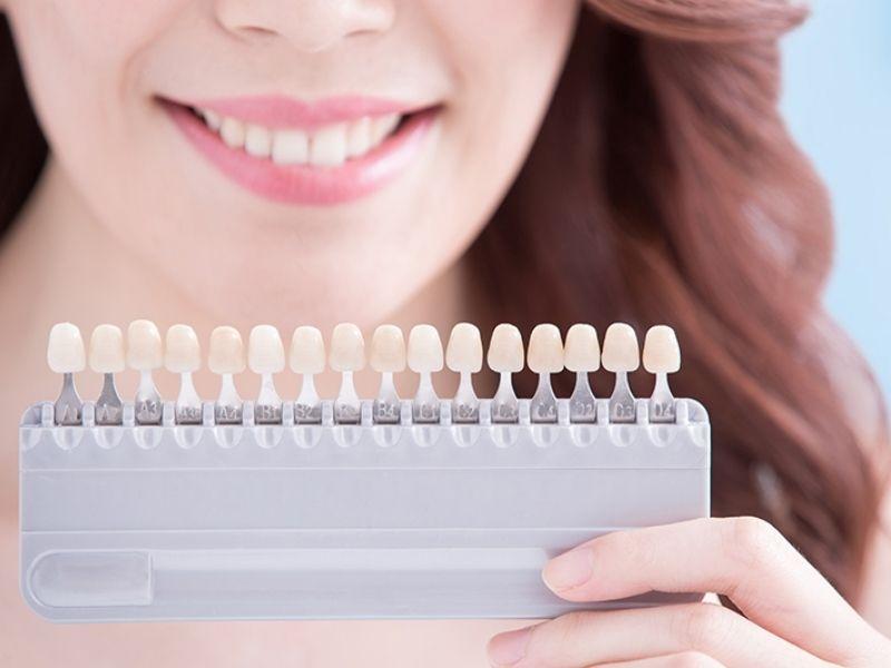 The Science Behind Teeth Whitening