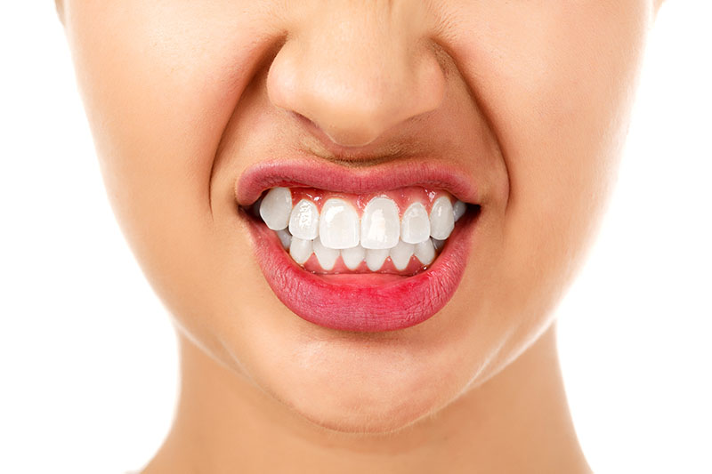 The Facts & Mysteries of Bruxism