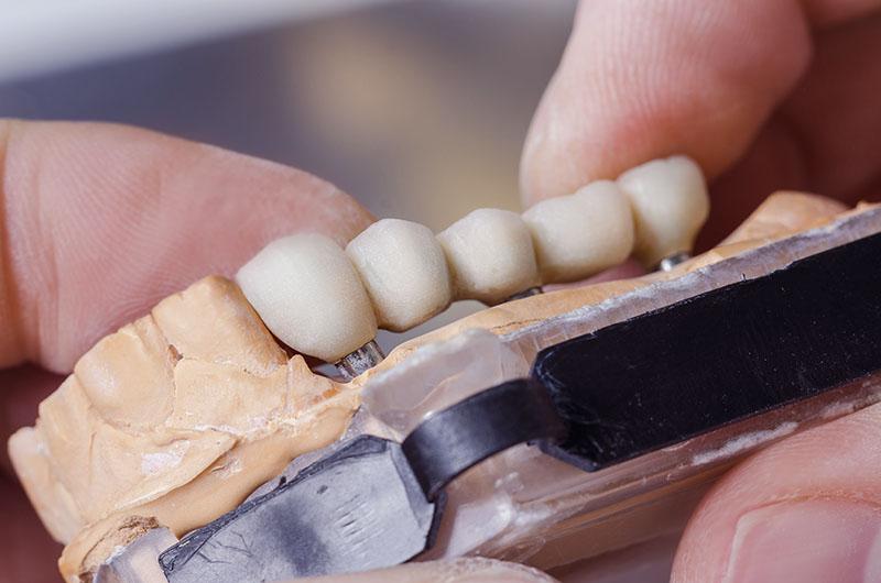 Dental Bridges Abridged