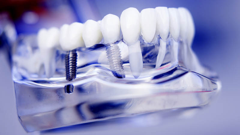 How Long to Dental Implants Last?