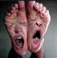 Le pied qui dort et sensation de brûlure dans la jambe