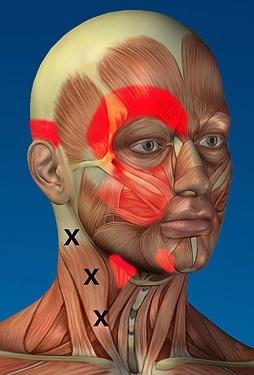 Trigger points du muscle sterno-cléido-mastoïdien
