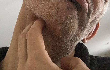 painful spot near throat