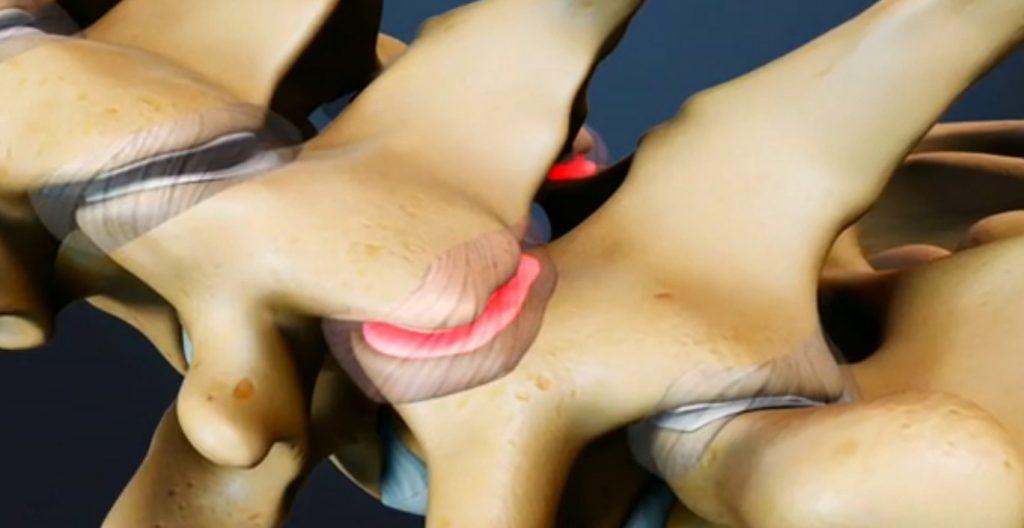 Arthrose cervicale: symptômes & traitement