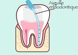 aiguille endodontique