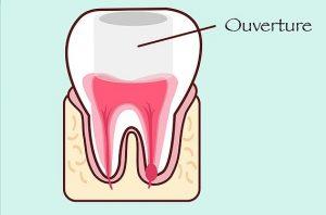 devitalisation dentaire: ouverture