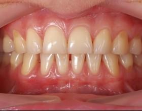 Curetage dentaire: soignons nos gencives.