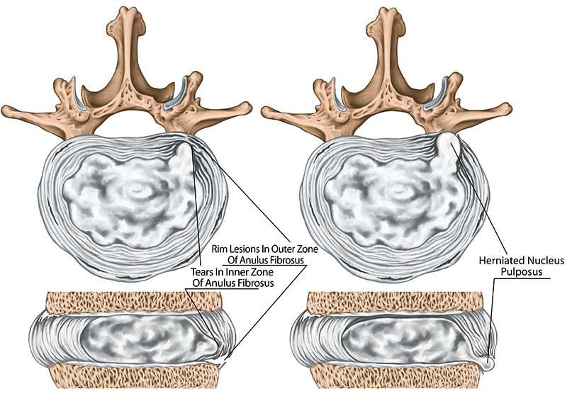 Quelle différence entre protrusion discale et hernie discale ?