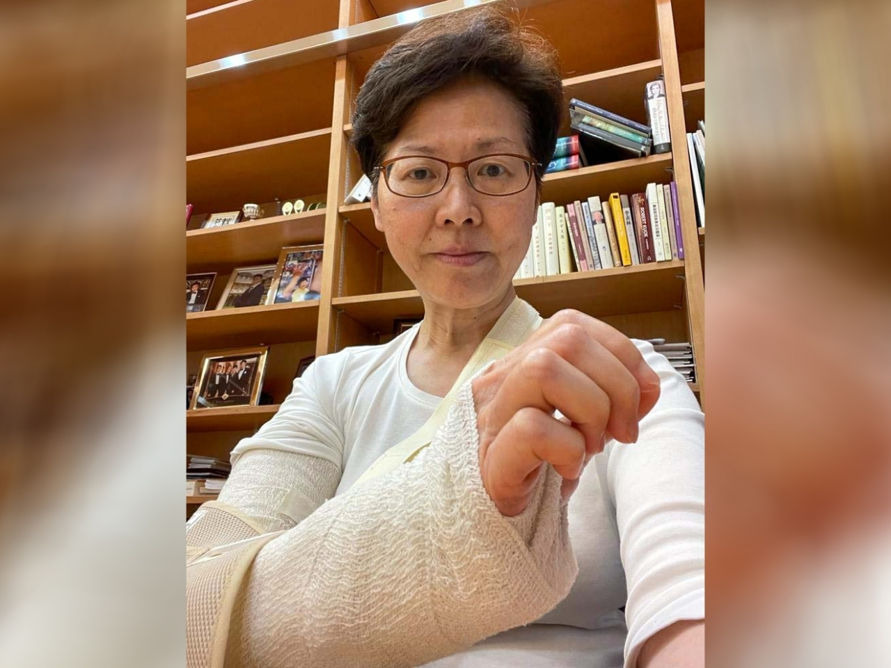 Fractured elbow will take weeks to heal: Carrie Lam