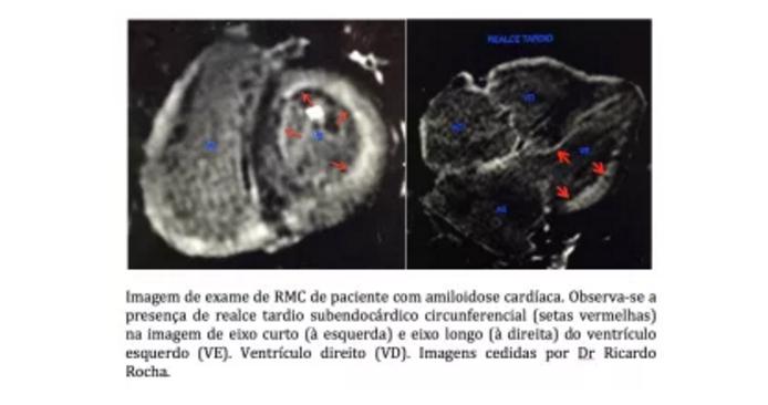 CardioAula - Médico escrevendo coração de ECG