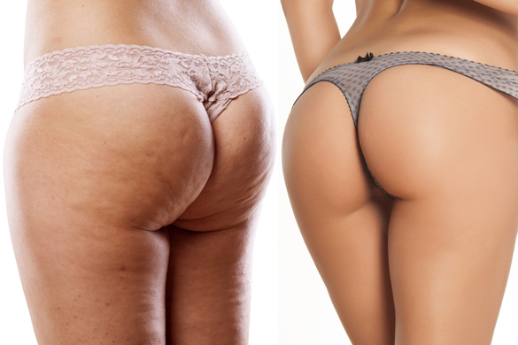body-care-female-buttocks-with-and-without-cellulite