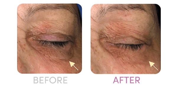 before after dark circles with skinax