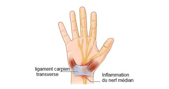 Comment soulager les symptômes du syndrome du canal carpien