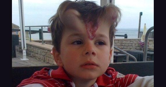 Une mère choquée de voir que les médecins avaient implanté les cornes à leur fils de 5 ans