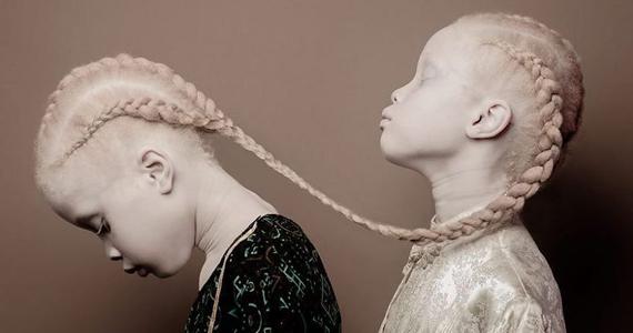 Regardez de près, ces jumelles inhabituelles seront certainement les prochains tops-modèles
