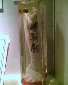 Songkran Niyosane Forensic Medicine Museum & Parasite Museum