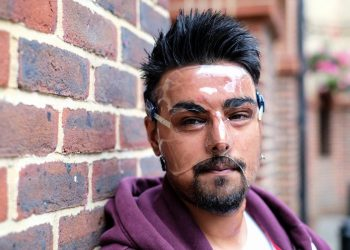 "Samir Hussain wearing a face mask - which he keeps on 24 hours a day - as he recovered from burns suffered in an acid attack.  (file pic) See National News story NNACID; Two men have admitted their part in throwing acid in a cinema-goer's face outside a screening of Straight Outta Compton after shouting ""you can seen gangsters now"". Samir Hussain was left with life-changing injuries from the horrific burns following the attack at a Cineworld.  The 28-year-old still has to wear a face mask 18 months after the attack in Crawley, West Sussex, in August 2015. Michael McPherson, 27, of Tooting Bec, south London, who threw sulphuric acid in Samir's face, previously admitted grievous bodily harm and will be sentenced at a later date. Lee Bates, 26, of Clapham, south west London, who was with McPherson at the time of the attack and punched Samir, admitted common assault and was sentenced today to a two-year conditional discharge at Brighton Magistrates' Court on Monday."