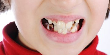 Bad child teeth