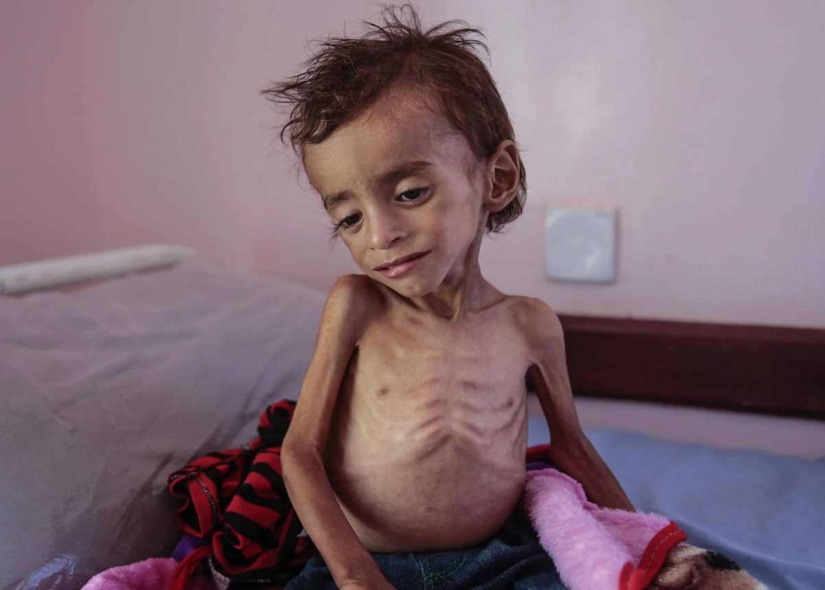 Yemen blockade humanitarian crisis