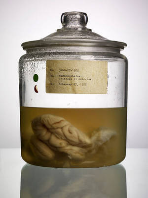 Malformed: Forgotten Brains of the Texas State Mental Hospital