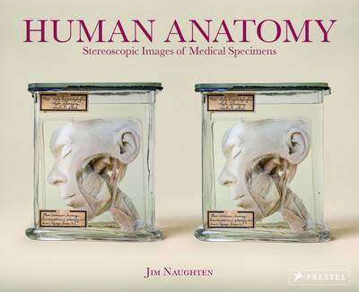 Human Anatomy - Stereoscopic Images of Medical Specimens