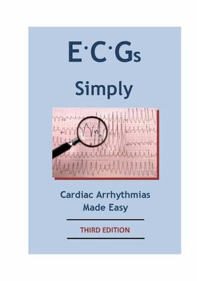 ECGs Simply - Cardiac Arrhythmias Made Easy